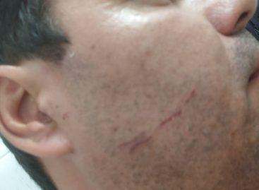 Vereador de Nossa Senhora de Lourdes acusa policiais da Caatinga de agressão