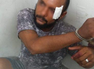 Homem é linchado após assalto no conjunto Orlando Dantas