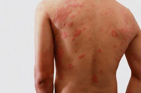 Hanseníase: doença silenciosa e infectocontagiosa que pode causar incapacidades físicas graves