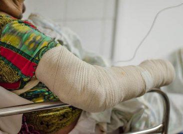 Huse registra 180 vítimas de queimaduras no primeiro trimestre