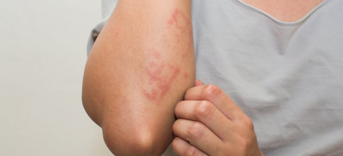 Mais de 800 pessoas deram entrada no Huse com algum tipo de alergia este ano