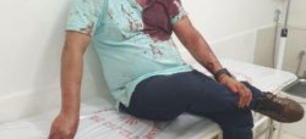 Briga em Dores termina com ex-diretor do Cirurgia e empresário feridos