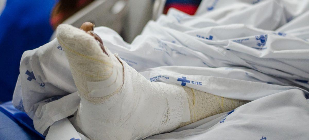 Coronavírus: Huse recebe vítimas de queimadura por álcool