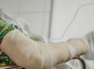 Cirurgiã Plástica alerta para cuidados com queimaduras durante período junino