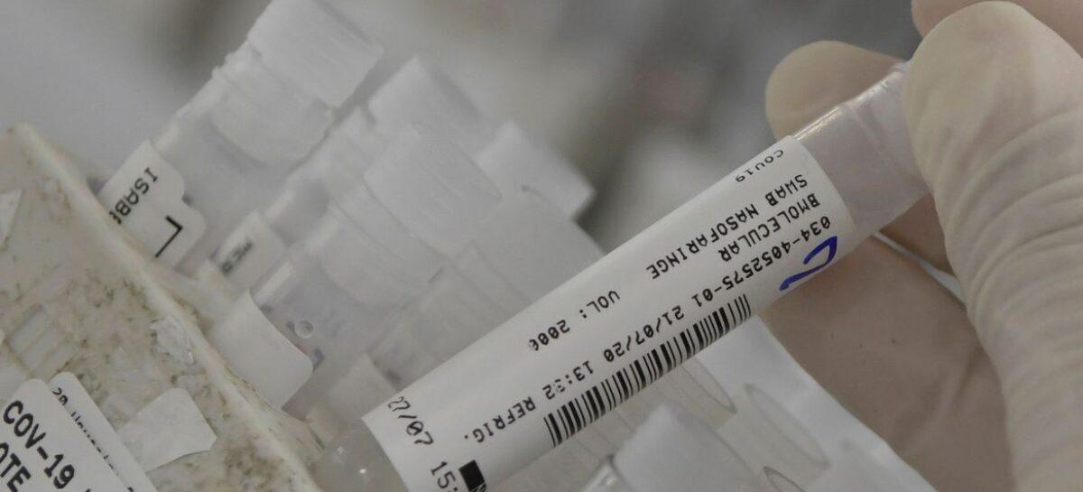 Brasil ultrapassa 7,2 milhões de casos de covid-19