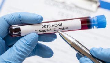 SES registra 491 novos casos de Covid-19 e mais oito óbitos no sábado