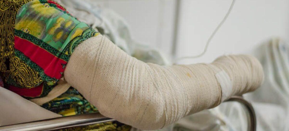 Medo da Covid-19 faz vítimas de queimaduras não buscarem atendimento médico